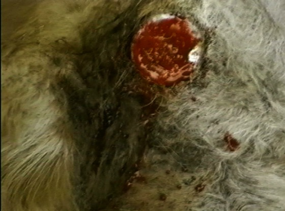 Huge circular wound
